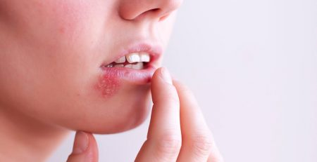 Tips for Managing a Cold Sore